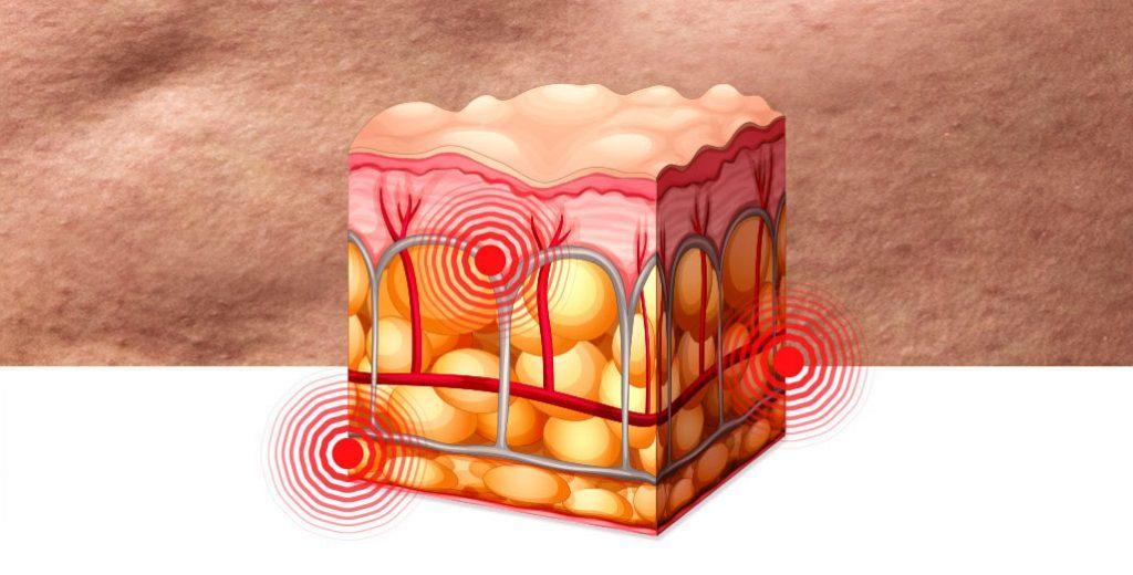 celulite inflamada