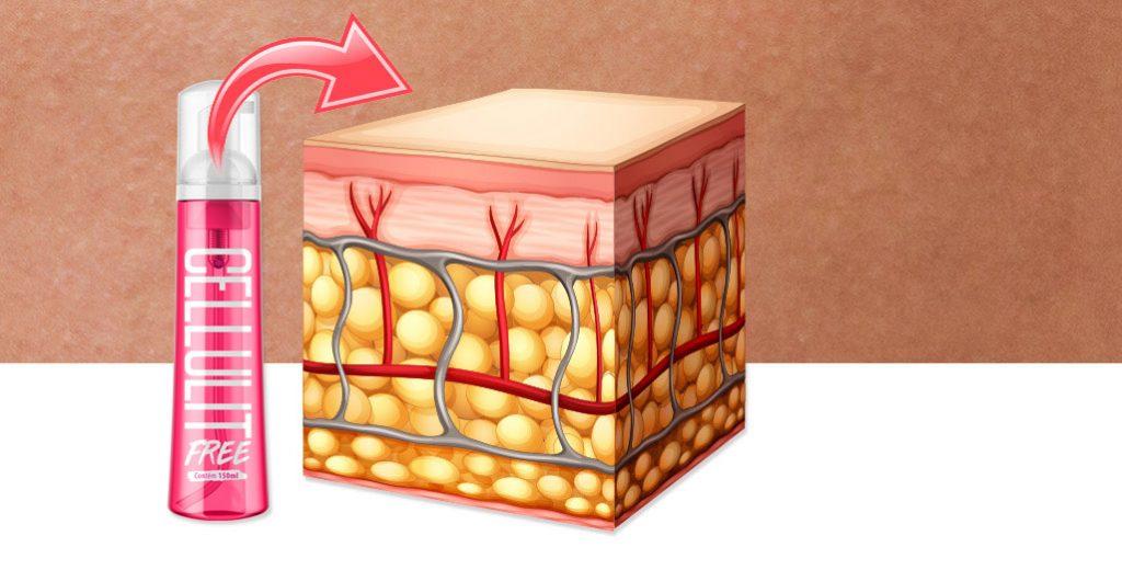 celulite tratada